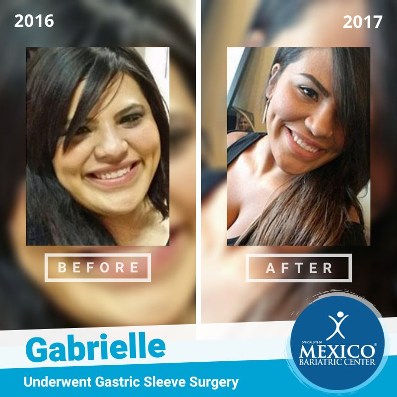 Gabrielle - Gastric Sleeve Surgery in Mexico-min