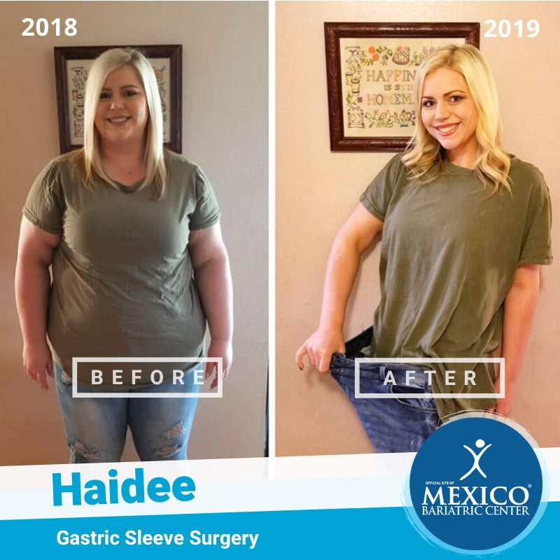 Haidee Before and After Gastric Sleeve 2019
