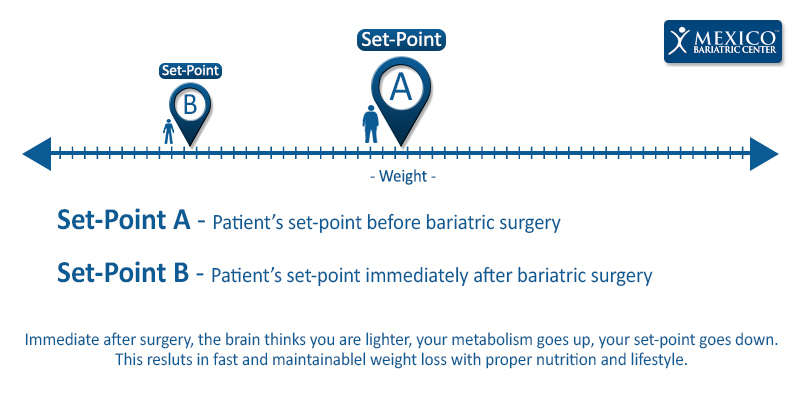 Set Point Examles with Bariatric Surgery Patients and Weight Loss