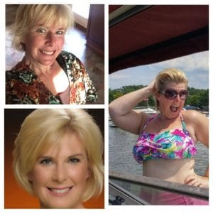 gastric sleeve patient, Laura, before and after photos
