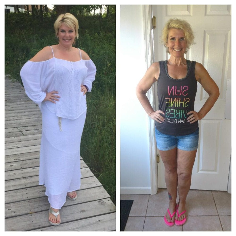 Laura - Weight loss surgery before and after in Mexico