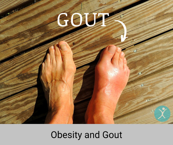 Obesity and Gout - Health Risks Tied to Obese