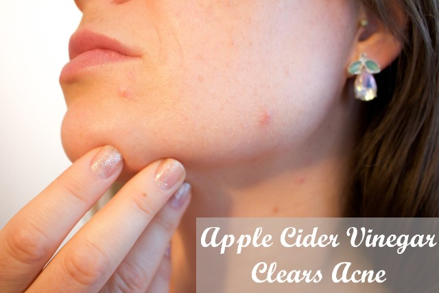 Apple Cider Vinegar Clears Acne
