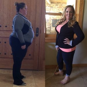 gastric sleeve surgery in Tijuana, before and after