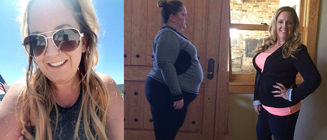 Former Gastric Sleeve Patient Shares Her Progress