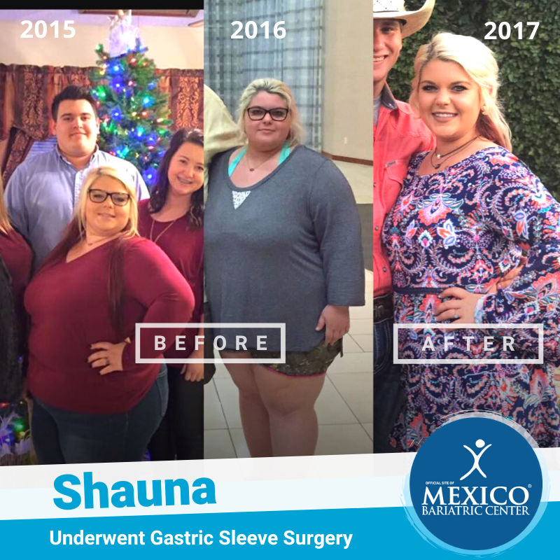 Shauna - Gastric Sleeve Before and After