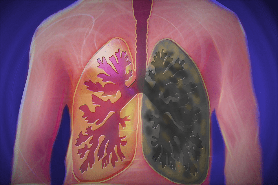 Smoker Lungs vs Normal Healthy Lungs