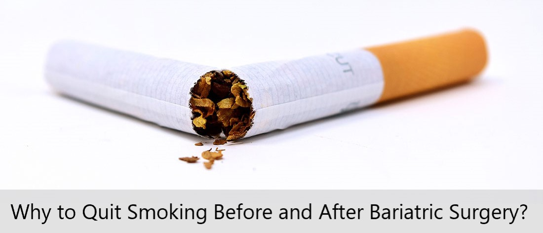 Why to Quit Smoking Before and After Bariatric Surgery - Mexico Bariatric Center