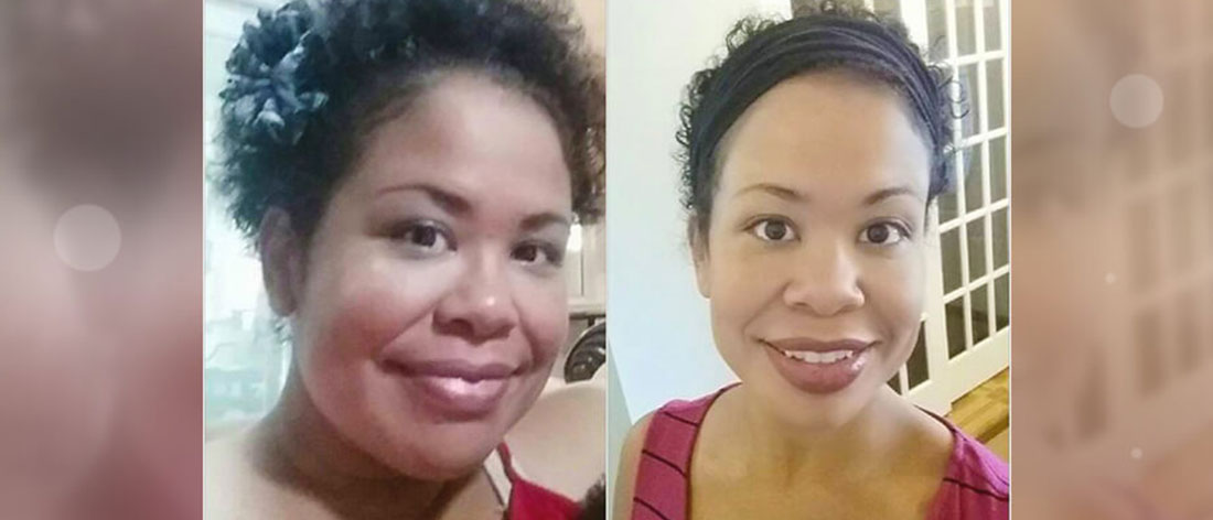 Esther Updates Us On Her Gastric Sleeve Surgery Success