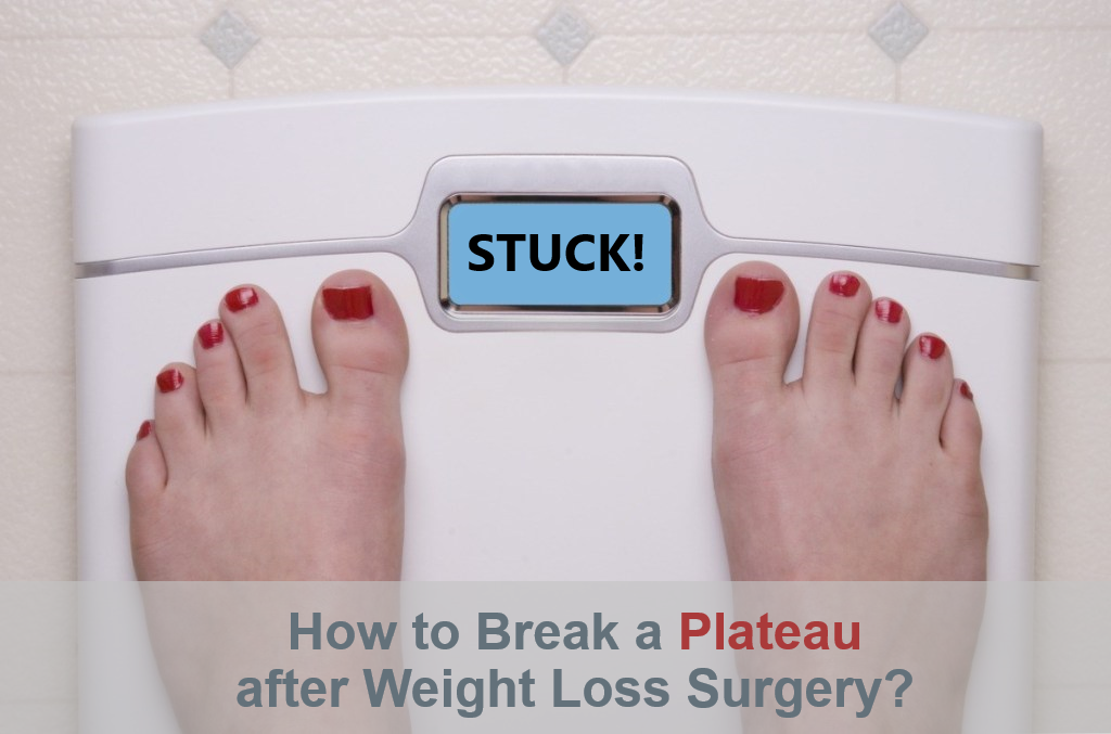 How to Break a Plateau After Weight Loss Surgery - Mexico Bariatric Center