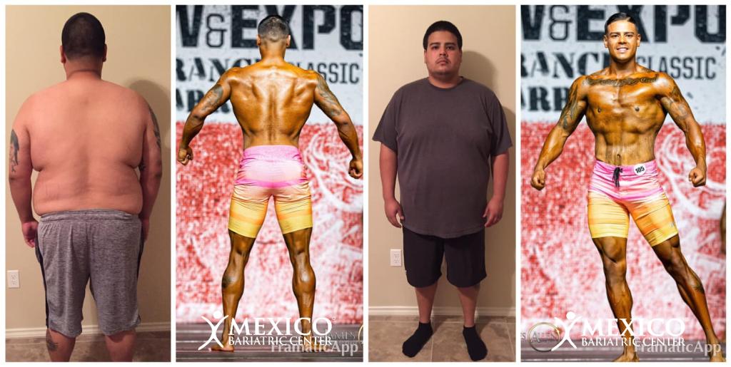 Kevin gastric sleeve bodybuilder