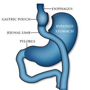 Gastric bypass surgery treatment for Gastroparesis
