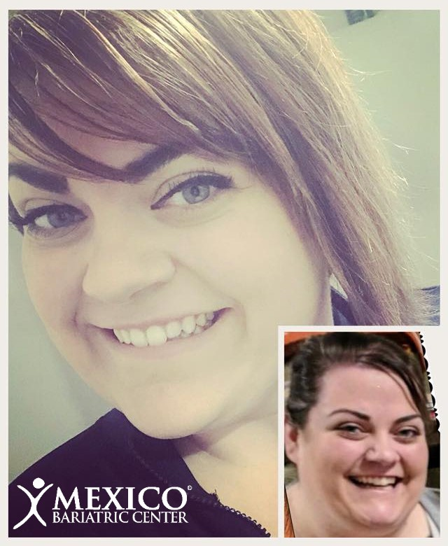 Ally NSV PCOS relief MBC