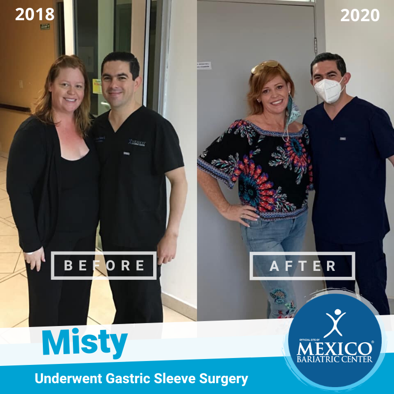 Patient Before and After in Hospital with Dr. Alejandro Gutierrez
