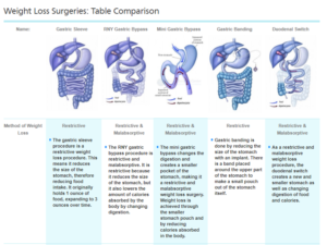 Bariatric Surgery Options