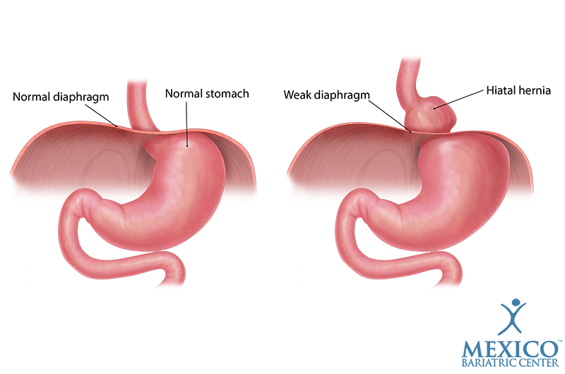 Hiatal hernia repair. Mexico Bariatric Center.