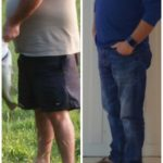 Man Lost Weight After Bariatric Surgery