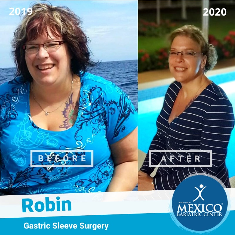 Robin Gastric Sleeve Surgery Before and After