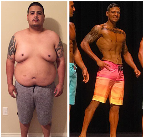 Mexico Bariatric Center. New You this New Year. Former patient, Kevin. Bariatric Patient Turned Bodybuilder. Non-scale victory.