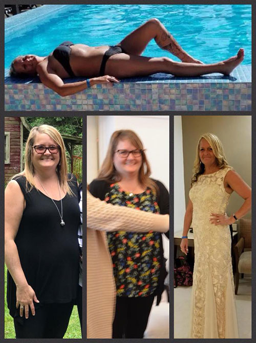 Mexico Bariatric Center. New You this New Year. Nikki before and after photos. Non-scale victory.