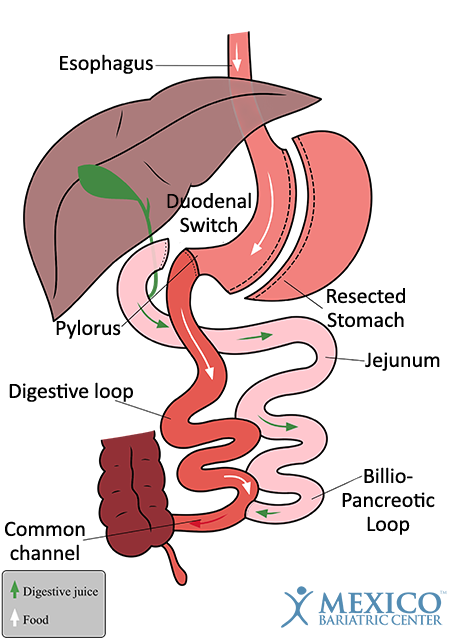 Duodenal Switch Surgery - How it Works - DS in Mexico
