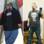 Anthony Before After Weight Loss Surgery with MBC