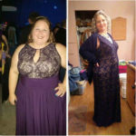 Bariatric Surgery Successful Weight Loss