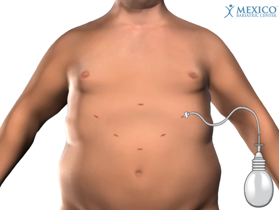 drain inserted after gastric sleeve surgery