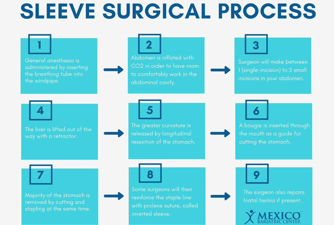 gastric sleeve surgical process procedure