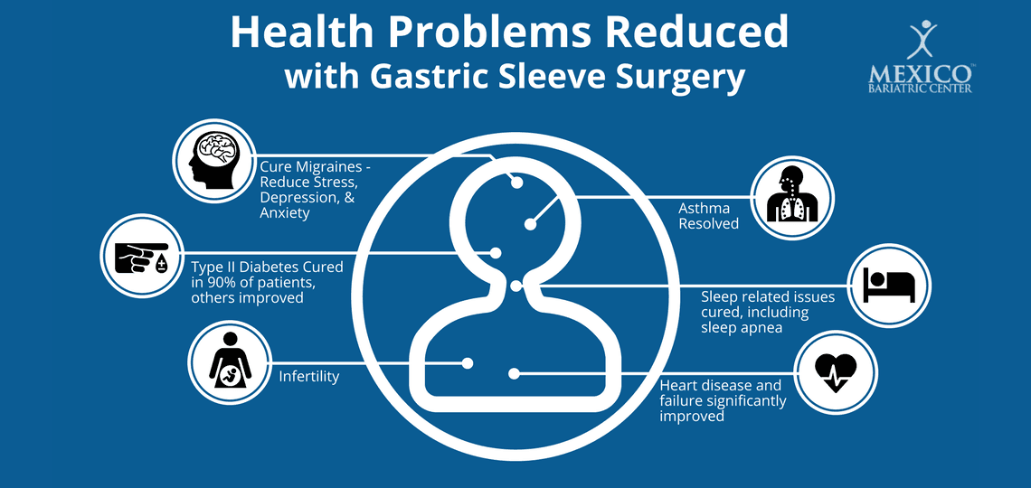 list of health benefits of gastric sleeve surgery