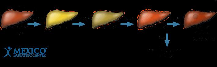 NAFLD Comparison Liver Disease