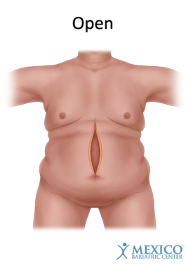 Open Bariatric Surgery