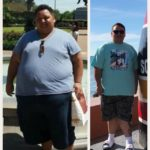 Robbie before after Bariatric Surgery Successful Weight Loss