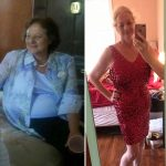 Barbara D before after weight loss MBC