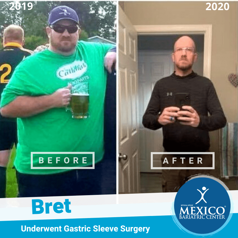 Bret sleeve surgery in Mexico success before and after - drinking alcohol - Mexico Bariatric Surgery Center