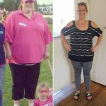 Casey Before After Bariatric Success MBC