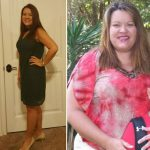 Christy before after Bariatric Surgery Successful Weight Loss