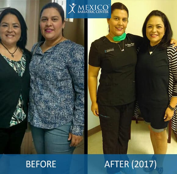 Dr. Louisiana Weight Loss Surgery Before and After Success Story - Mexico Bariatric Center