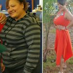 Escobar O-L Before After Weight Loss MBC