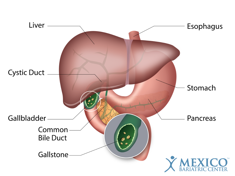 How You Know You Have Gallstones: Signs, Symptoms, & Treatment