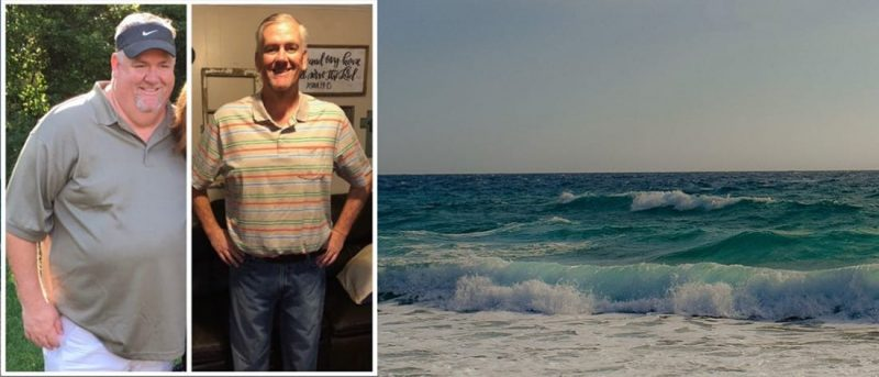 Gastric Sleeve Success Story - Rusty's Testimonial