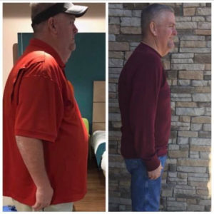 Gastric Sleeve Success Story Rusty