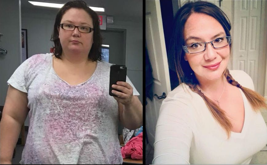 Jay - Weight Loss Surgery Before and After Success Story - Mexico Bariatric Center