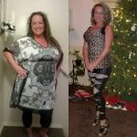 Jen M before after Bariatric Surgery Successful Weight Loss