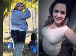 Karlee - Weight Loss Surgery Before and After Success Story - Mexico Bariatric Center