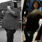 Lyndsey L before after success 2 MBC
