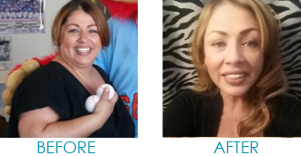 Maria Weight Loss Surgery Before and After Success Story - Mexico Bariatric Center