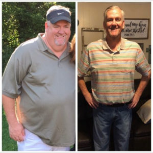 Rusty Before After Gastric Sleeve