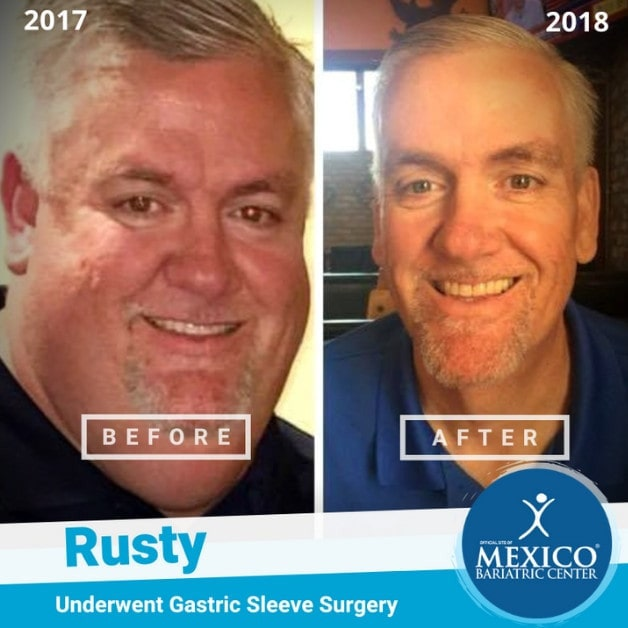 Rusty Gastric Sleeve Surgery Before and After Photo