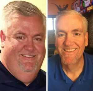 Rusty L before after FTF gastric sleeve surgery success MBC